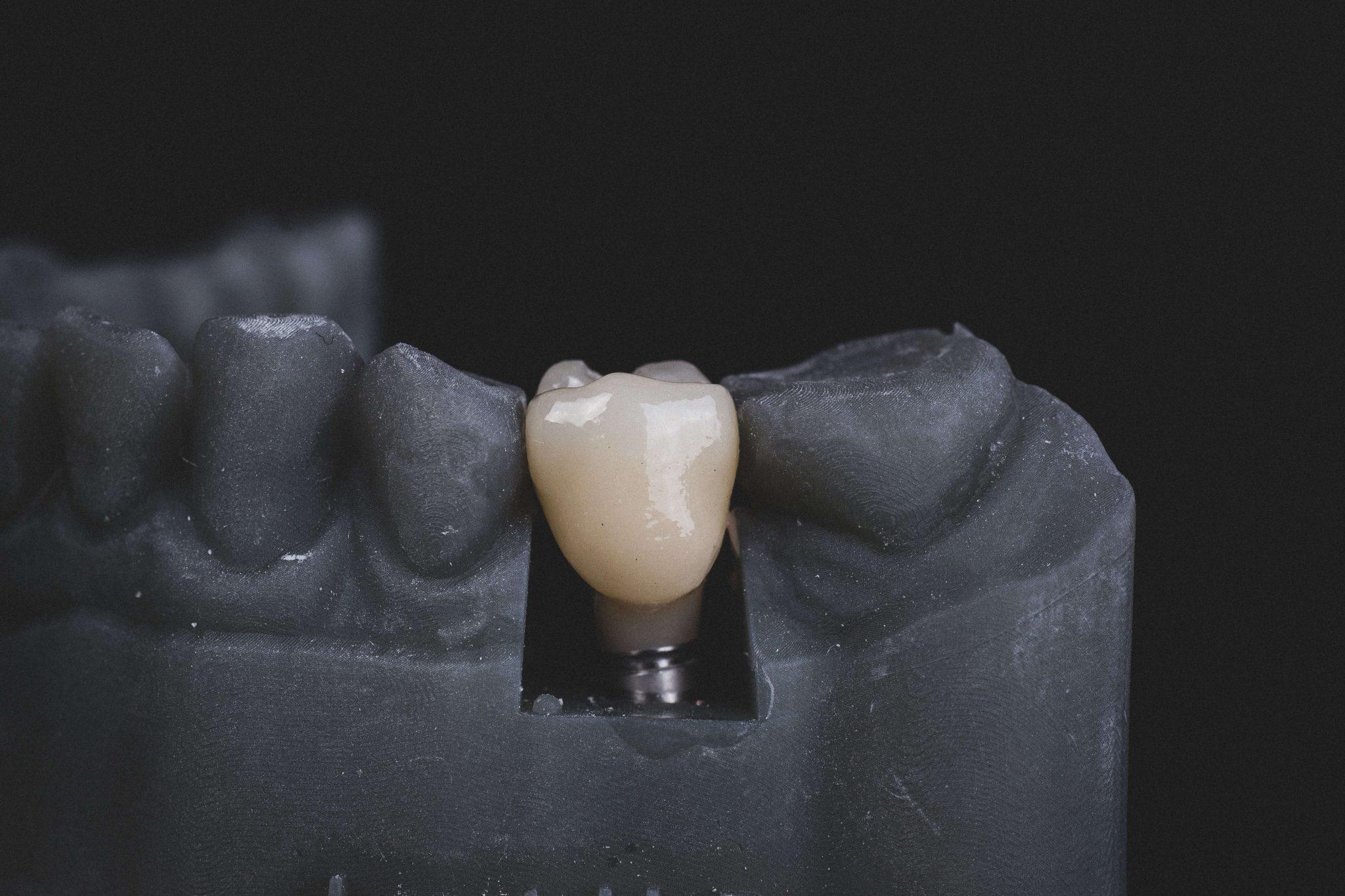 Ranking implantów zębowych – o tym warto wiedzieć!